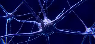 Neurology SCE