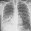 Respiratory Medicine SCE (Free Trial)